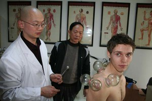 zhen-quans-hot-cupping